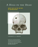 HOLE IN THE HEAD MORE TALES IN THE HISTORY OF NEUROSCIENCE