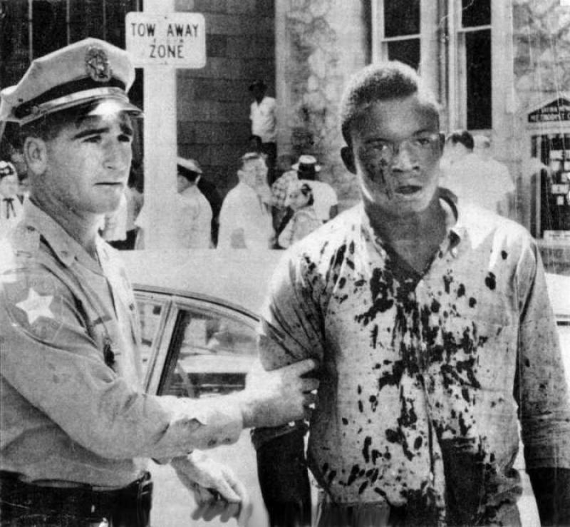 A black student covered in blood being escorted by a white officer on Axe Handle Saturday