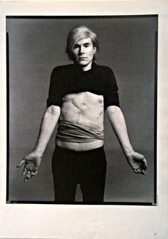 Warhol's gunshot scars