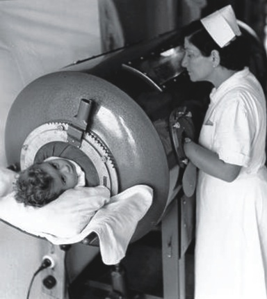 The iron lung was a critical crucial to the care of polio patients. Morris Memorial Hospital had back-up generators and hand pumps to continue to aid the patients' respiration in the event of a power outage.