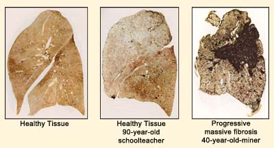Image of the effects of black lung
