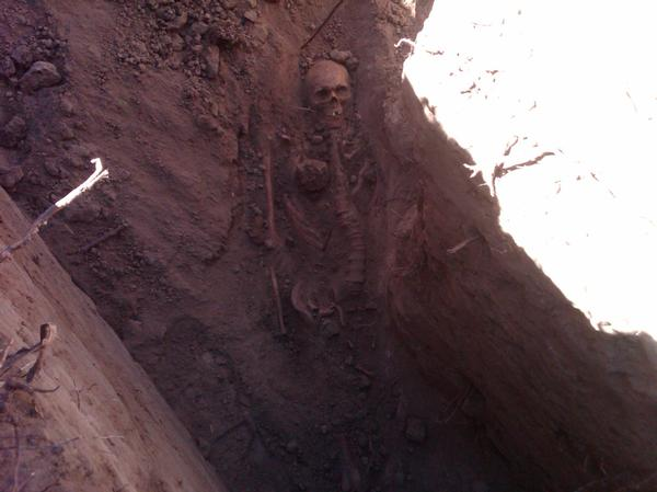 Skeletal remains uncovered in Cheesman Park in 2012 (image from The Denver Post)