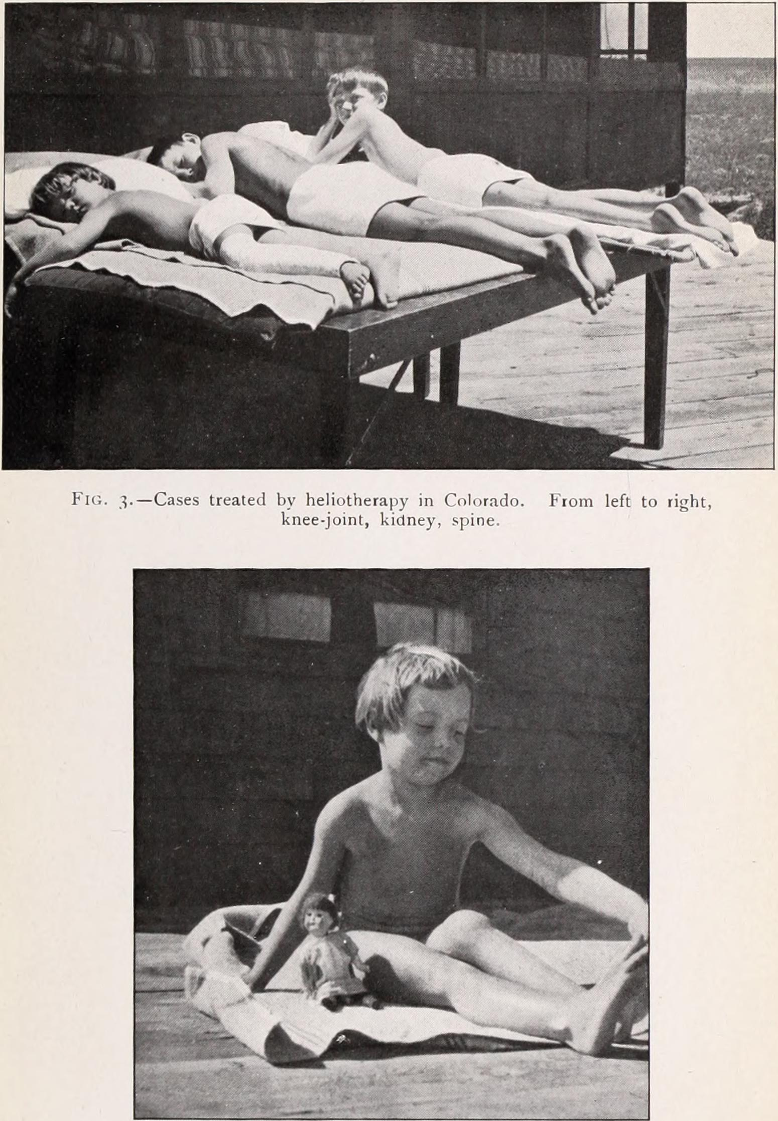 "Article on ""heliotherapy"" in Colorado about treatment for tuberculosis, from the Transactions of the American Climatological and Clinical Association of 1915."