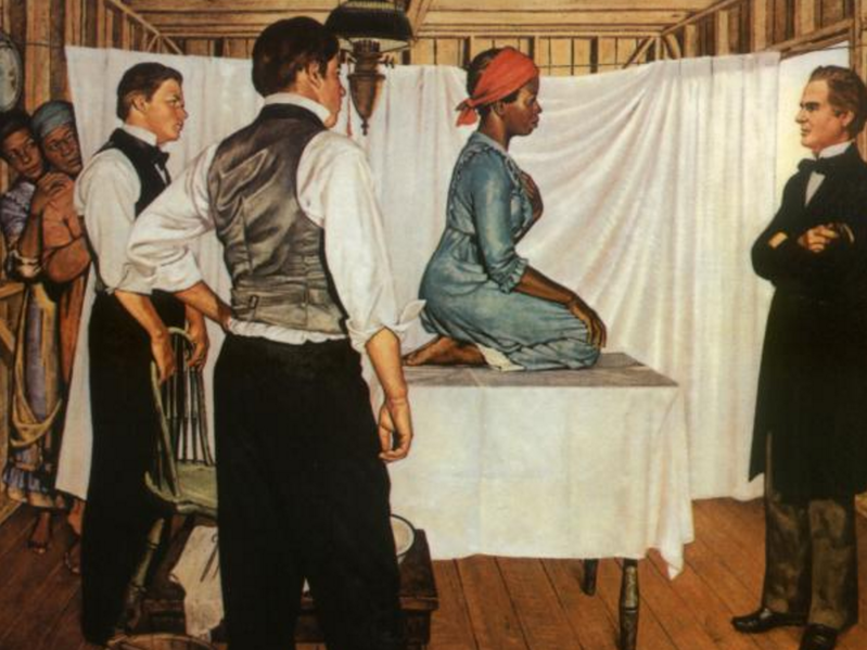 Painting by Robert Thom.  The woman on the table is Dr Sims's patient Anarcha who received 30 operations over Sims's 4 years of fistula experimentation. Dr Sims is the man in front of Anarcha, and the other two men are other doctors observing the procedure. The two women in the background are other enslaved experimental subjects.