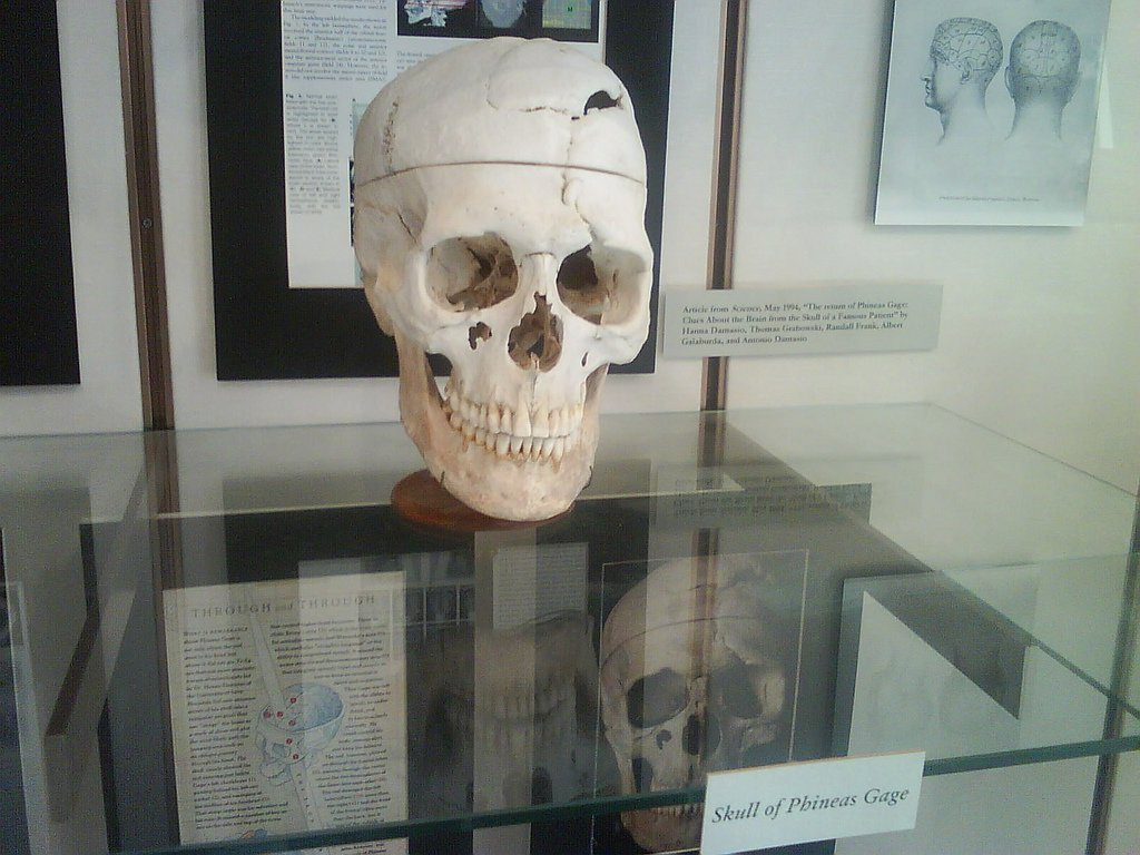 This is an up-close view of Gage's skull at Harvard University School of Medicine.