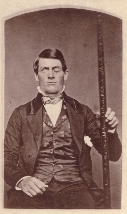 This is a photo of Phineas Gage.