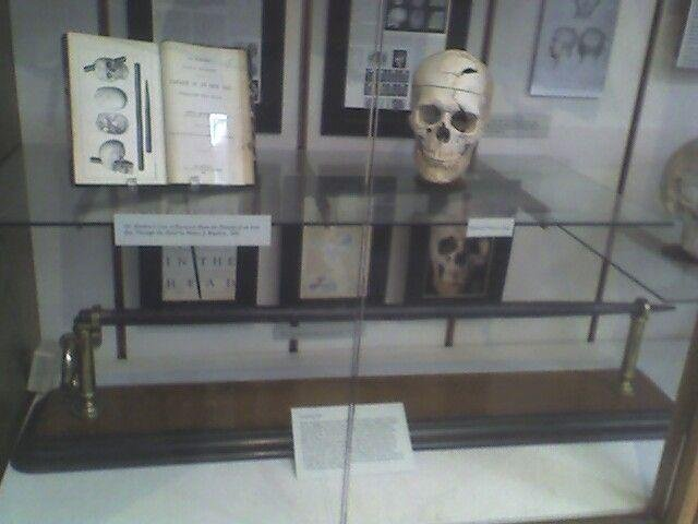 This is a photo of Gage's exhibit at Harvard University School of Medicine.