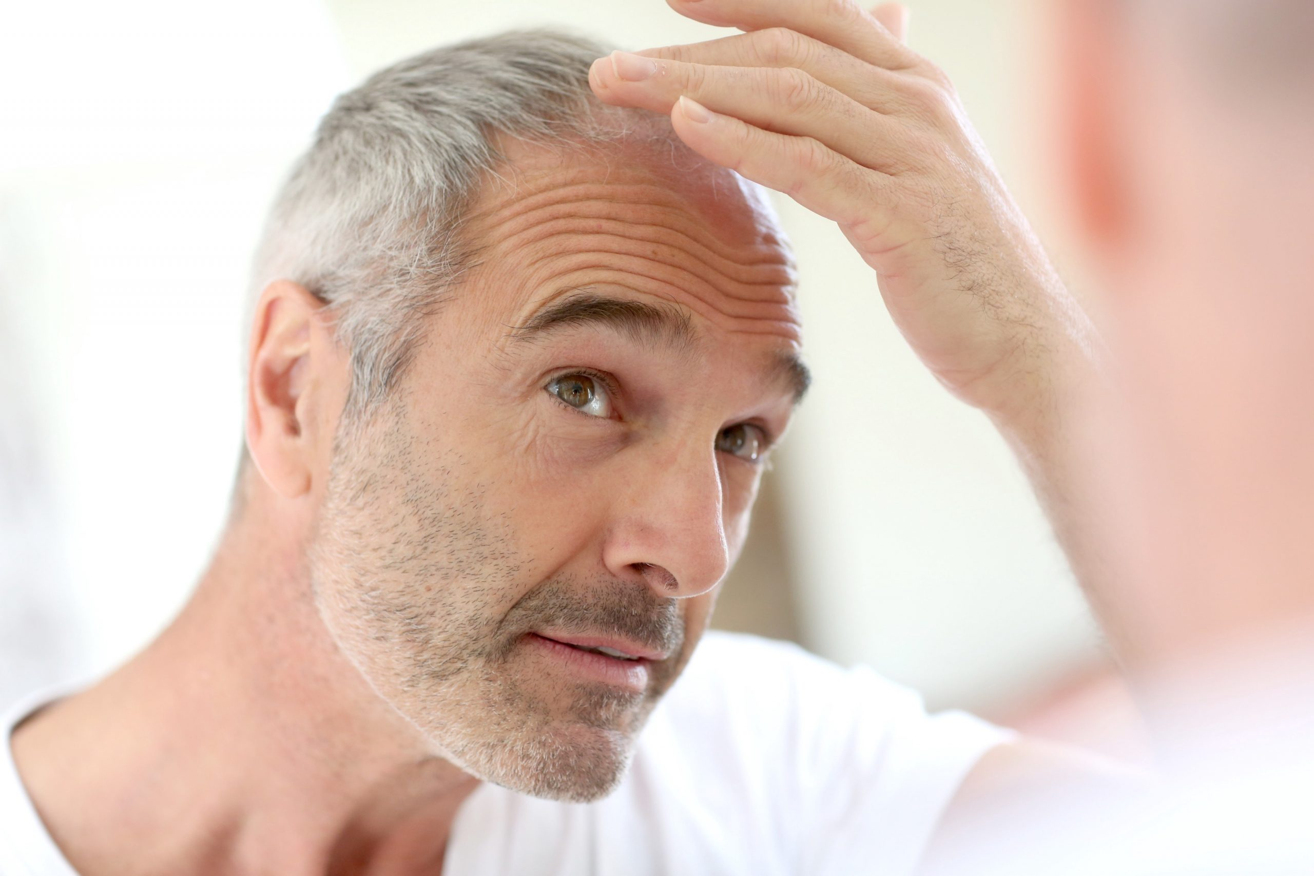 Scalp Med side effects