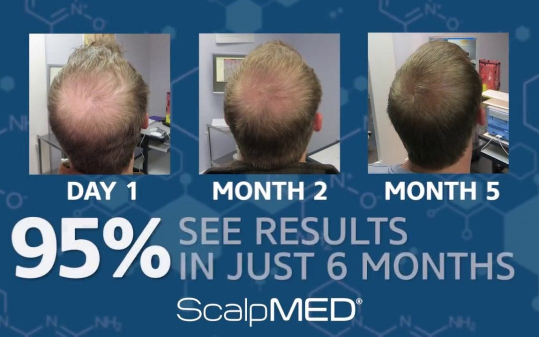 Scalp Med vs Rogaine – Which is better?