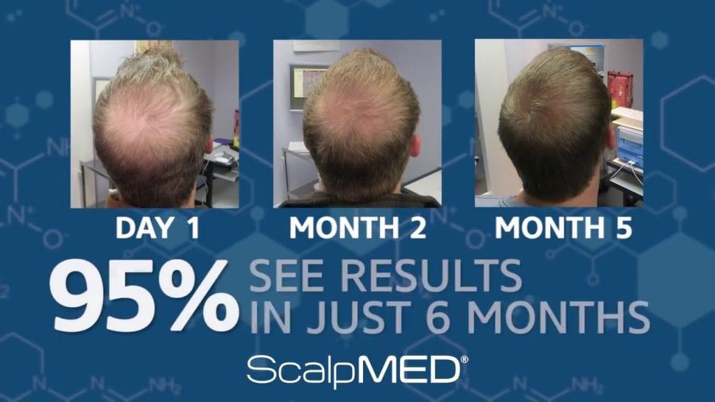 Does Scalp Med grow hair