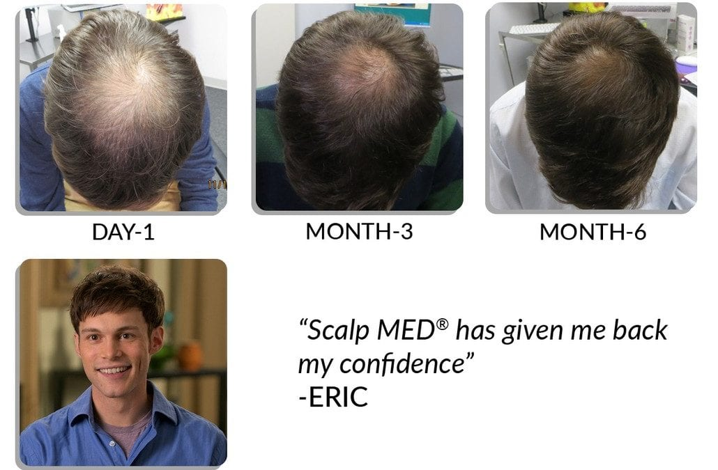 Best Scalp Med for men products