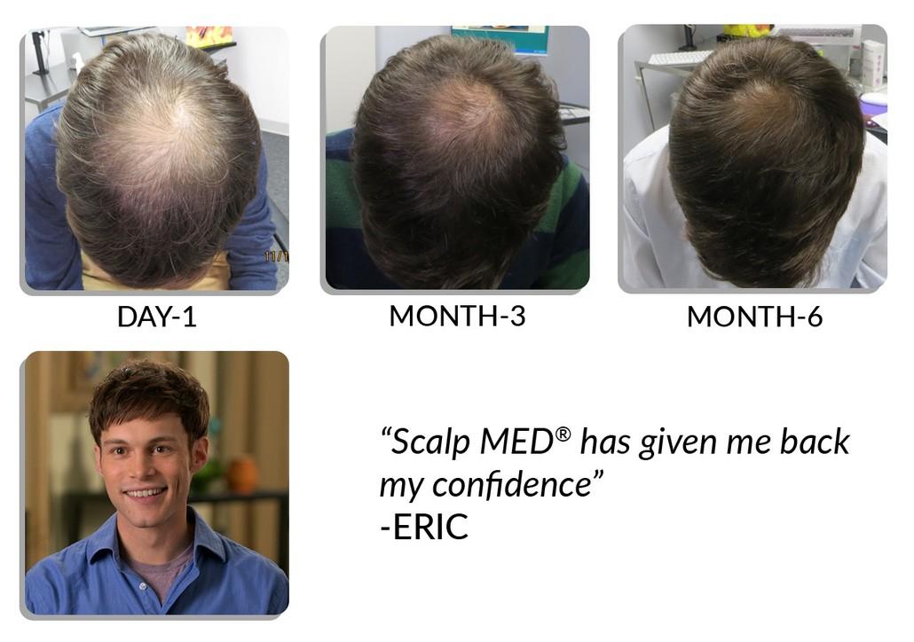 Scalp Med for men