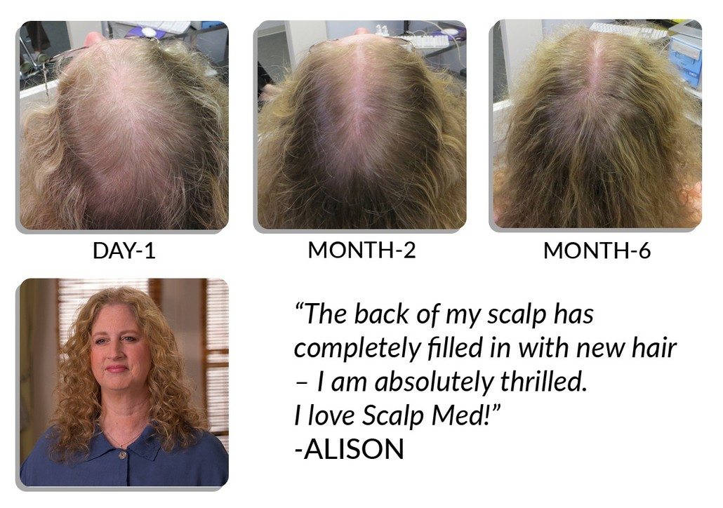 Scalp Med for women