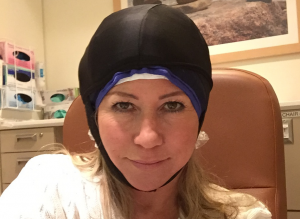 Cold caps are sometimes worn by chemo patients who are trying to minimize hair loss. PLEASE consult with your oncologist prior to using.