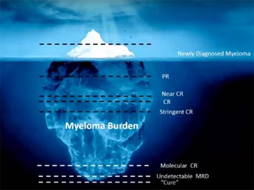 myeloma-iceberg