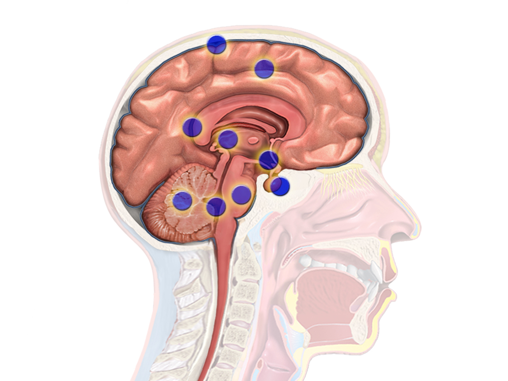 Nerve stimulation pulls patient from 15-year vegetative state ...