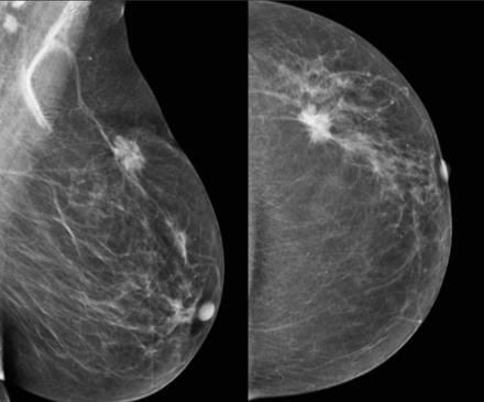 将乳腺癌筛查的研究扩展到日本yabo网球