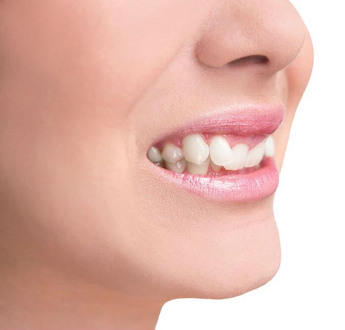 Purpose of Dental Braces