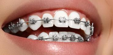 The 9-Second Trick For How Much Do Braces Cost A Month