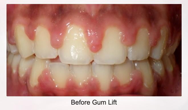 Before Gum Lift