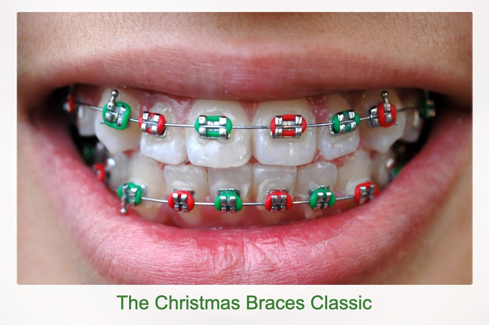 Christmas Braces Colors idea: Red and Green