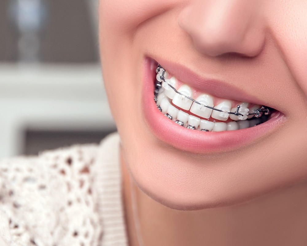 Girl smiling with clear braces