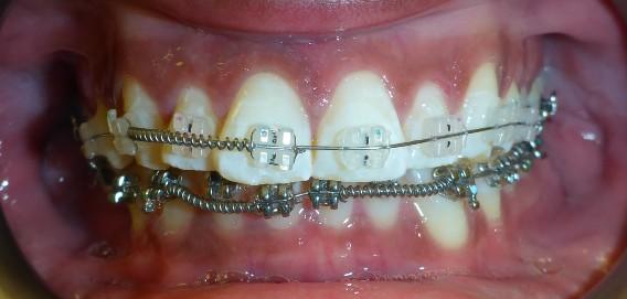 Clear Braces Treatment in Progress