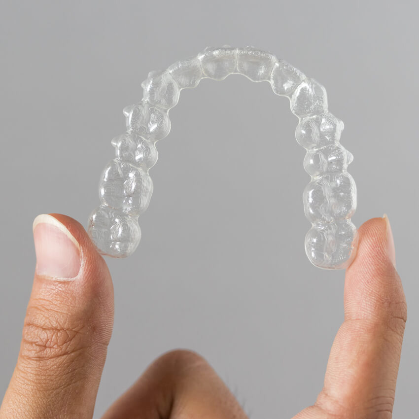 Diamond Braces North Bergen New Jersey Clear Aligners for Teens & Adults