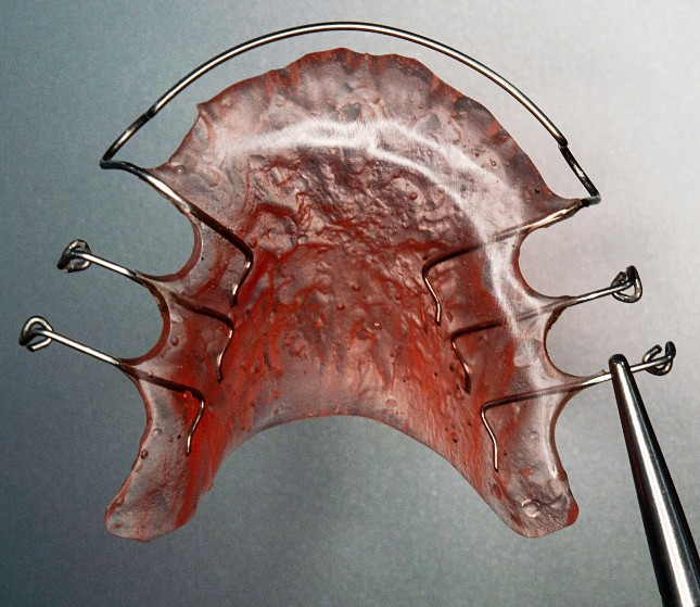 Hawley retainer example with red acrylic plate