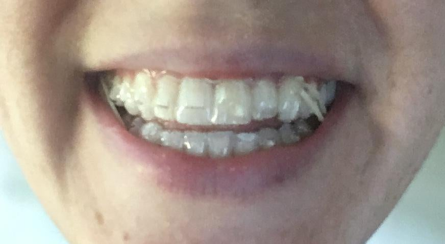Invisalign Clear Aligners During Treatment