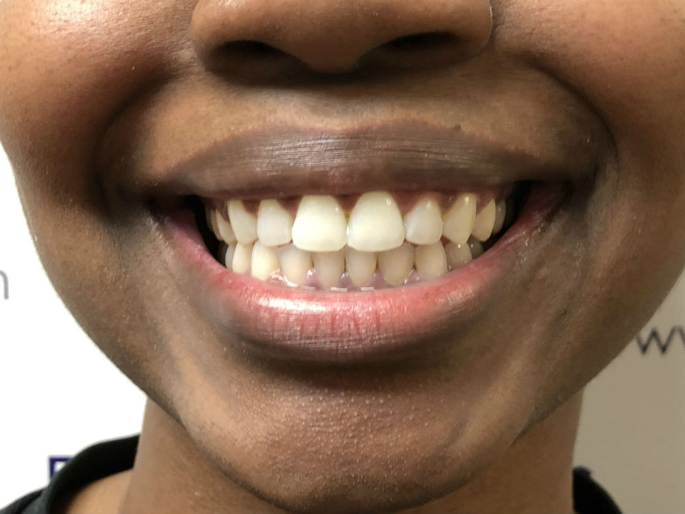 Local Lawyer Thrilled with Her Invisalign Smile – Beyond Reasonable Doubt!