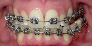 Metal Braces Treatment in Progress