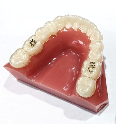Example of a Vivera clear retainer on a model