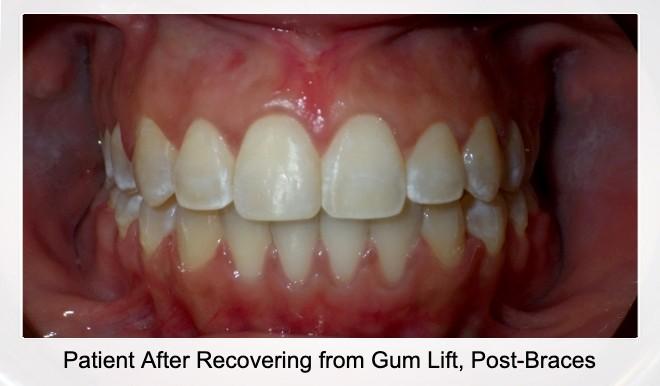 Patient After Gum Lift and Braces