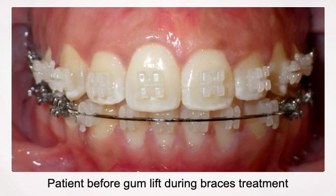 Patient Before Gum Lift During Braces Treatment