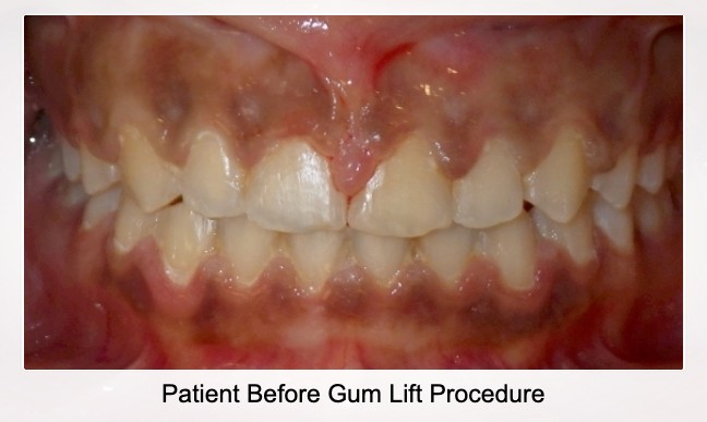 Patient Before Gum Lift Procedure