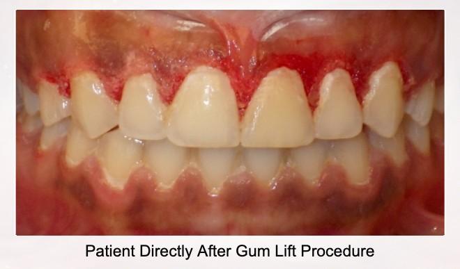Patient Directly After Gum Lift Procedure