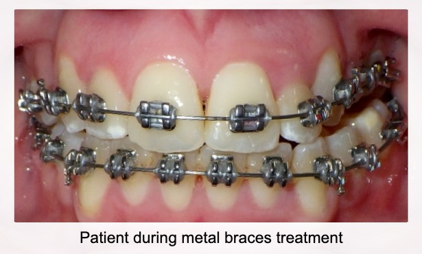 Patient During Metal Braces Treatment