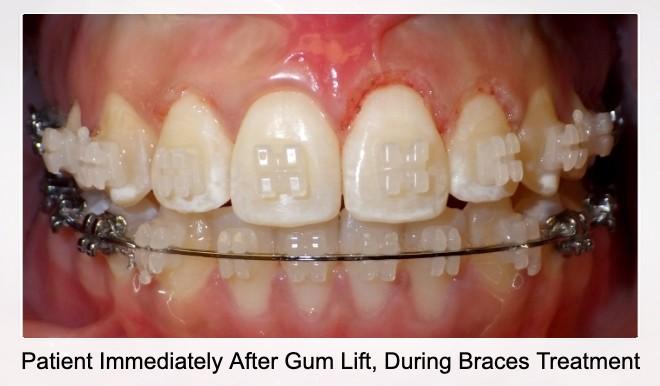 Patient Immediately After Gum Lift