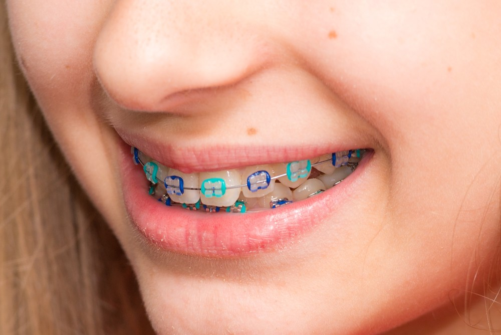 Patient smiling with colorful braces