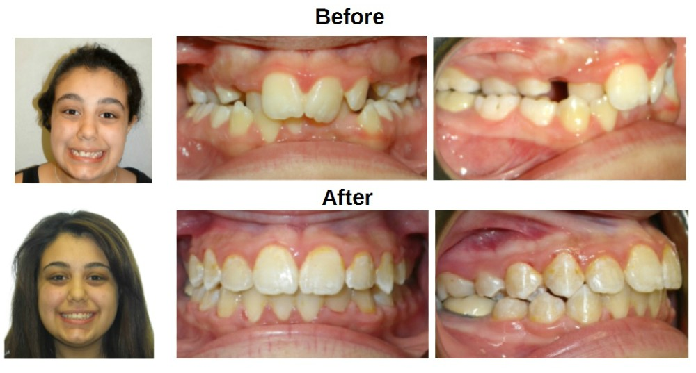Before and After Metal Braces Treatment for Crossbite Overbite and Overjet