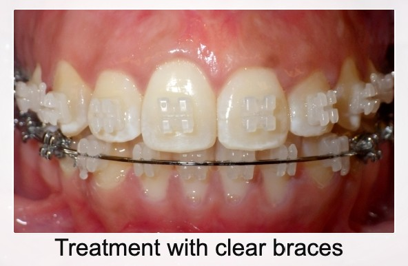 Clear braces treatment in progress