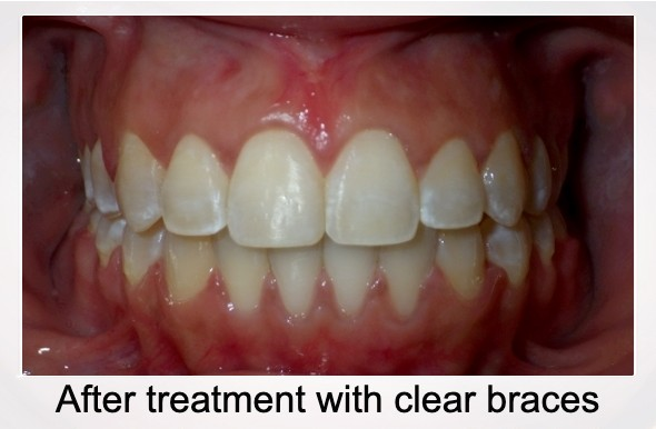 After clear braces treatment