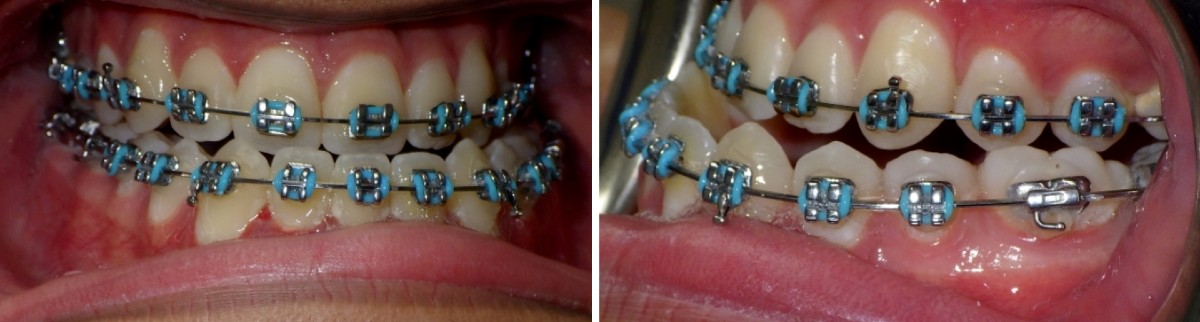Patient with crossbite during braces treatment