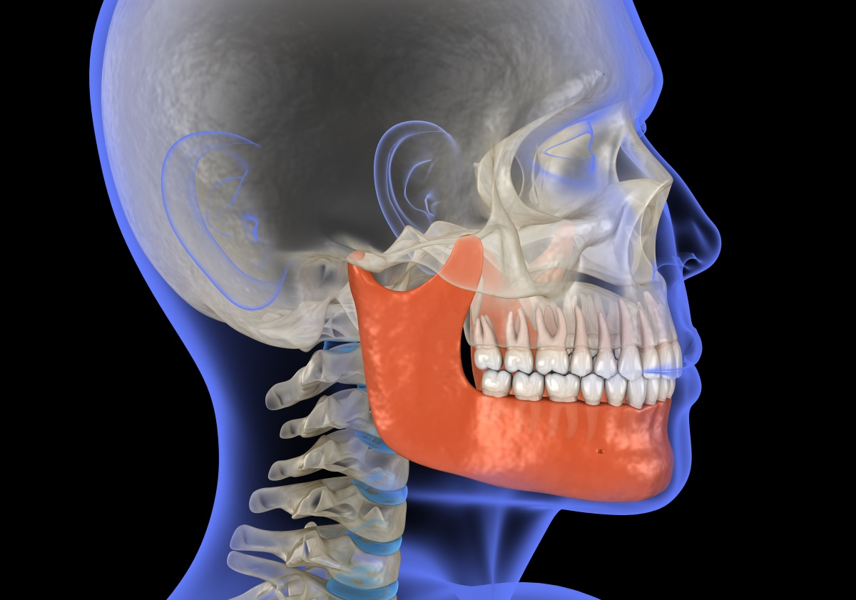 Person with jaw issues that can be fixed with clear aligner therapy
