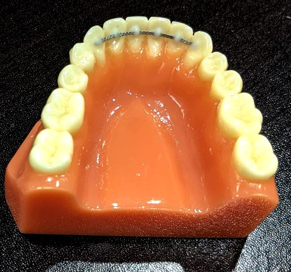 Permanent bonded retainer on a dental model
