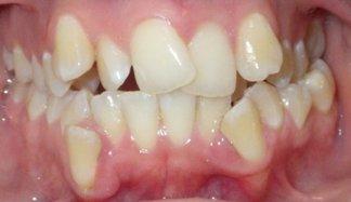 Nikkea's Teeth Prior to Braces