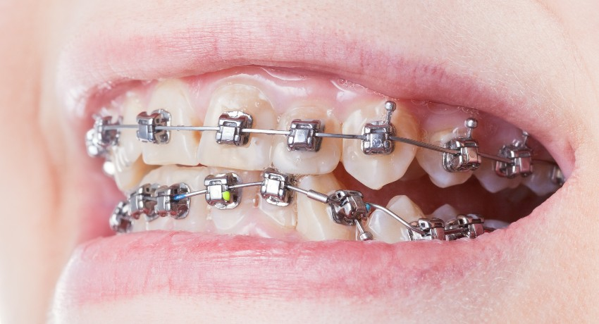 Patient with Self-Ligating Braces