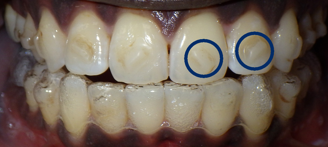 SmartForce Invisalign Attachments