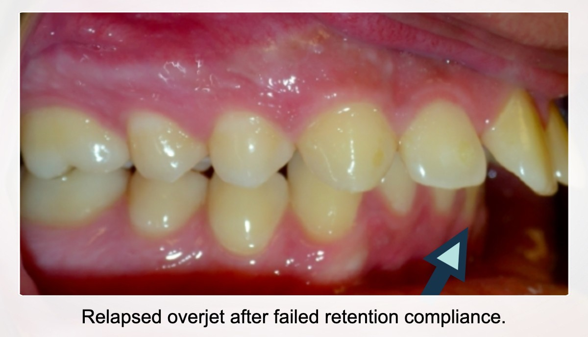 Example of an overjet relapse after failure to wear retainers